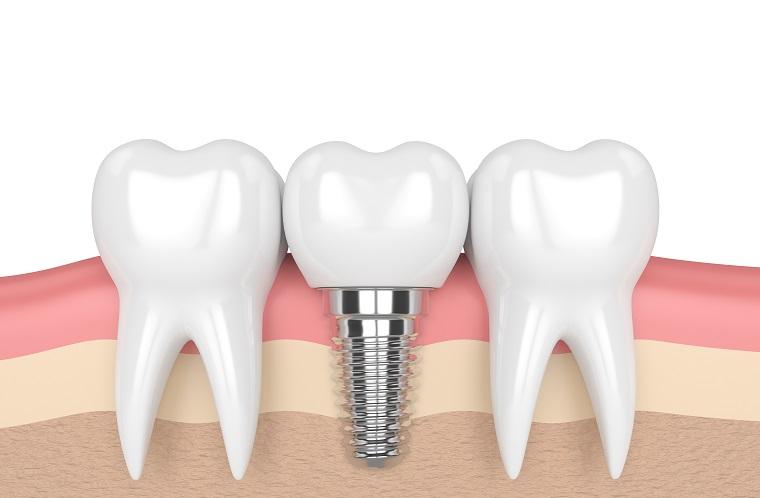 Coluna Dr Juliano: Implantes dentários