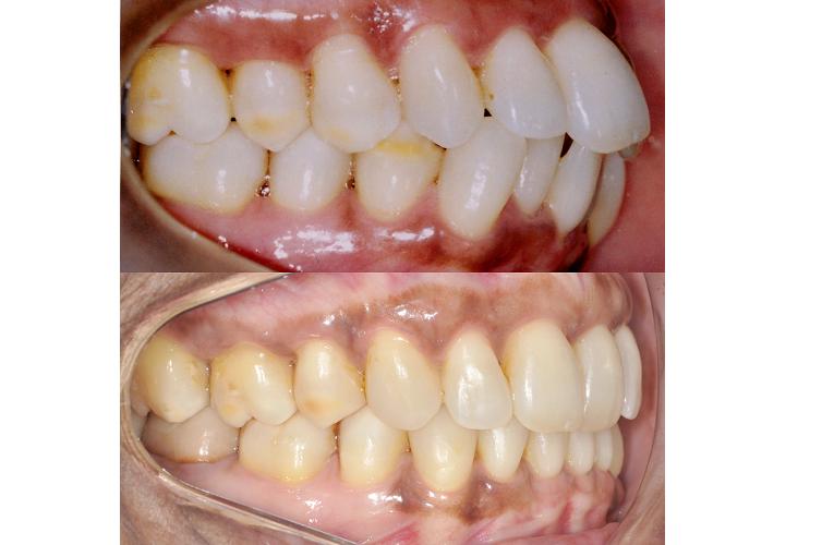 Dr. Juliano Roque - Biprotrusão dentária.