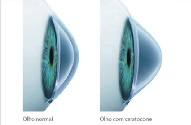 Dra. Fernanda Vieira | O Ceratocone